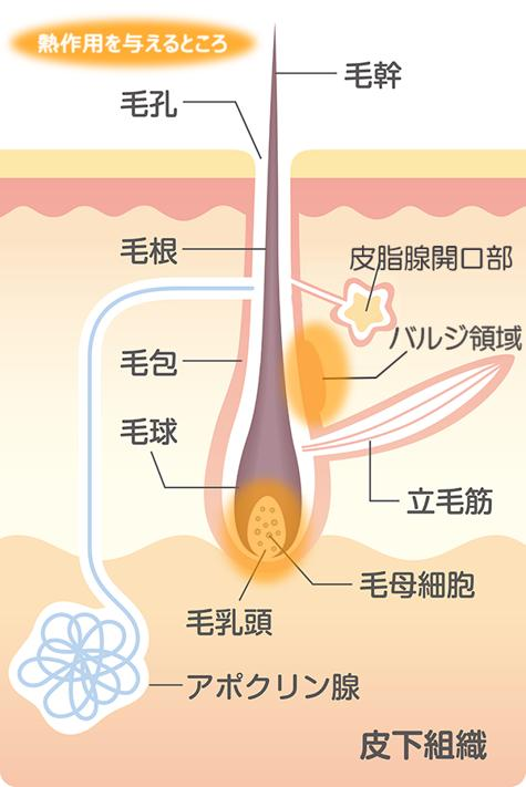 Illustration of hair structure and the action of heat storage type hair removal