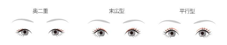 可通過切口法複製的雙眼皮的主要設計和特徵