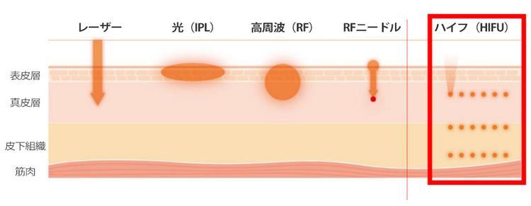 Un diagramma che mostra la profondità energy_skin di Ultraformer 3 chiamato HIFU